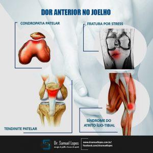 dor no joelho anterior